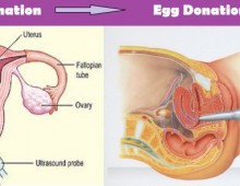 Egg donation in Lebanon, Egg donation Lebanon, Egg donation